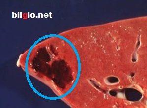 Karaciğerde damar yumağı bitkisel tedavisi