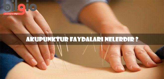 akupunktur-faydaları