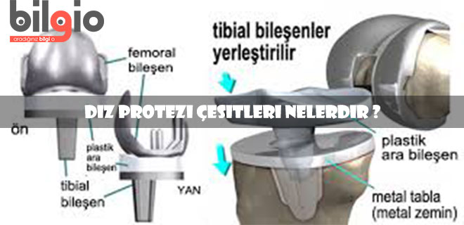 diz-protezi-çeşitleri