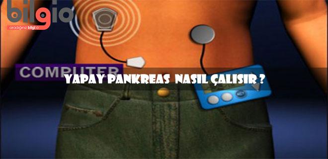 yapay-pankreas-nasıl-çalışır