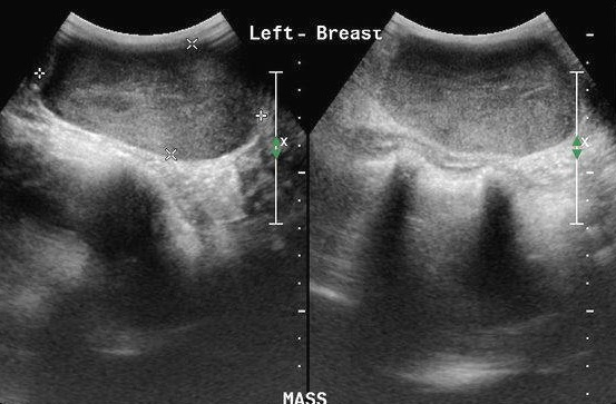 fibroadenom