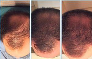 PRP saç tedavisi fiyatları