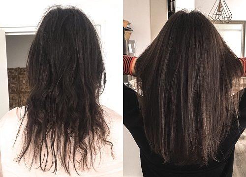 doğum kontrol hapı saçı uzatır mı